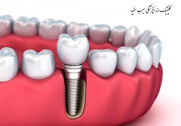 ایمپلنت دندان چگونه کار می کند