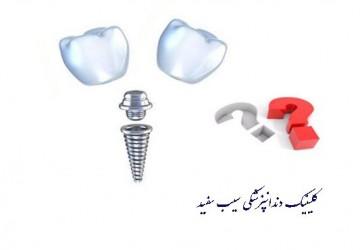یک ایمپلنت دندان، جایگزین چند دندان می شود