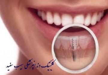 آیا ایمپلنت دندان پوسیده می شود