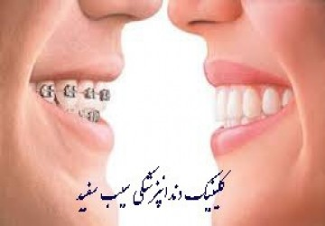 تفاوت لمینت دندان و ارتودنسی