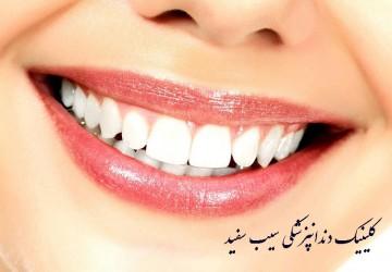 مزایای لمینت دندان