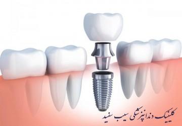 فیلم مراحل و خطرات ایمپلنت دندان