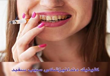 آماری تجربی از تاثیر سیگار بر لمینت یا کامپوزیت دندان
