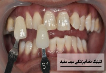 سفید کردن لمینت و کامپوزیت دندان