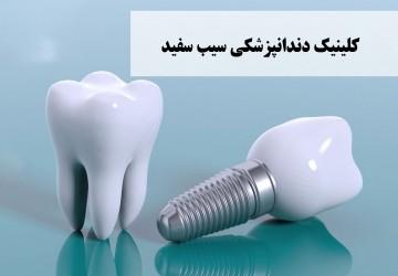 انجام ایمپلنت دندان چقدر زمان میبرد؟