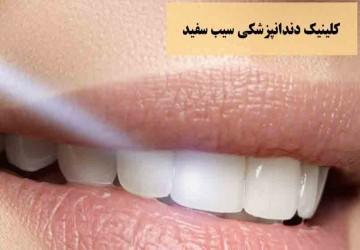 همه نکته هایی که لازم است قبل از کامپوزیت دندان بدانید