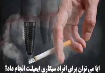 آیا می توان برای افراد سیگاری ایمپلنت انجام داد؟
