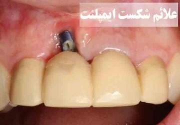 علائم پس زدن و شکست ایمپلنت دندان