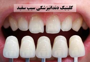 لمینت دندان و انواع آن