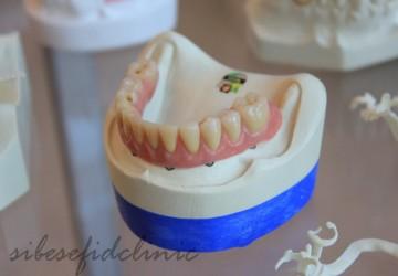 ایمپلنت بهتر است یا بریج دندان