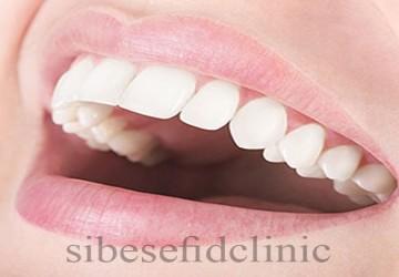 تراش دندان برای لمینت سرامیکی