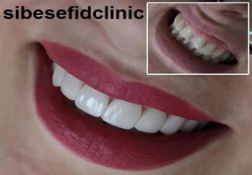 بهترین برند برای انجام کار کامپوزیت دندان