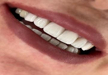 انتخاب رنگ لمینت دندان