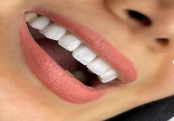 چند نوع درمان زیبایی برای اصلاح رنگ و فرم دندانها داریم؟