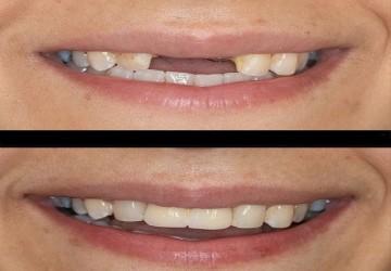 جراحی سینوس برای کاشت ایمپلنت دندان