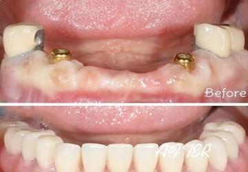 ایمپلنت، بهترین جایگزین برای دندان از دست رفته