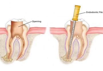 دلایل نیاز شما به عصب کشی دندان چیست؟