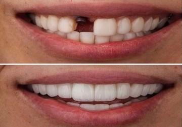میزان موفقیت در ایمپلنت دندان