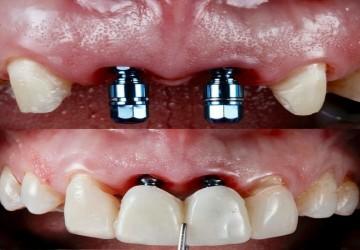 سوالات متداول درباره ایمپلنت دندان