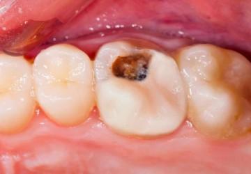 همه چیز درباره عصب کشی دندان