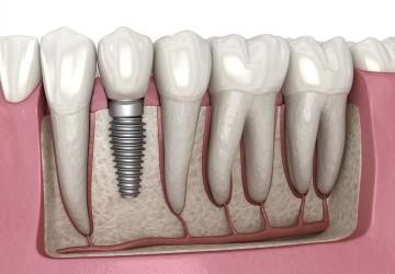 بیمه تکمیلی برای ایمپلنت دندان
