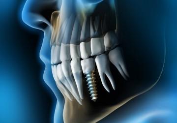 چرا ایمپلنت دندان انقدر مهم است؟