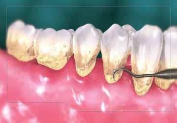 چه مواردی را باید دربارهی جرمگیری دندان بدانیم؟