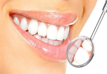 همه چیز دربارهی لمینت دندان