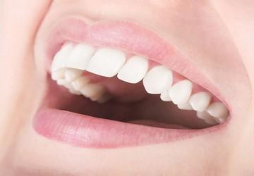 اصلاح طرح لبخند، طراحی لبخند