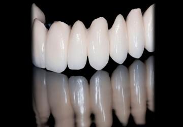روکش دندان و هزینهی آن