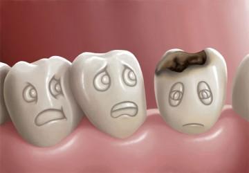 پوسیدگی دندان و عوامل موثر بر آن