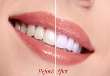 طول عمر کامپوزیت دندان