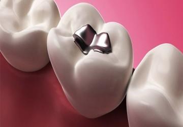 مراقبتهای بعد از پر کردن دندان