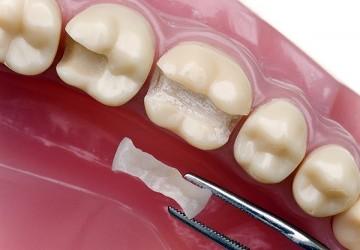 مواد پر کننده دندان-جنس مواد پرکننده دندان