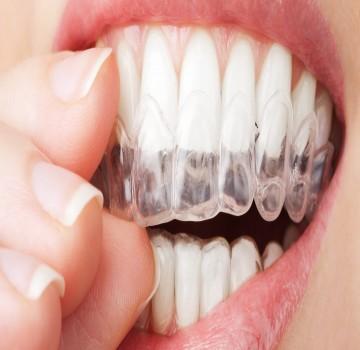 سفید کردن یا بلیچینگ دندان | هزینه و انواع آن