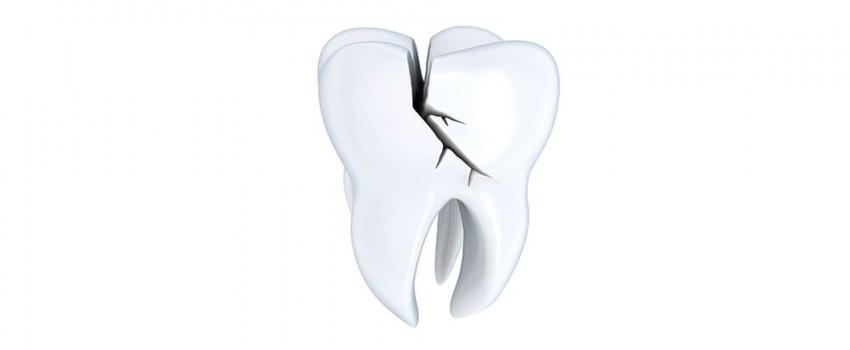 دندان ترک خورده و درمان آن