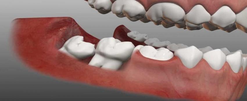 دندان عقل - چگونگی جراحی و کشیدن دندان عقل