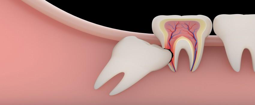 مراقبتهای بعد از کشیدن دندان عقل، توصیههای مهم بعد از جراحی دندان عقل