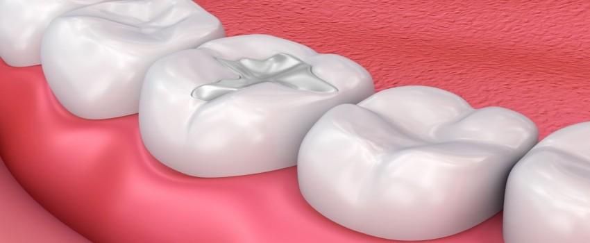 پرکردن دندان با کامپوزیت، اقدامات قبل از پرکردن دندانها