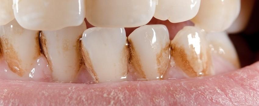 علل به وجود آمدن لکههای قهوهای بر روی دندان چیست؟