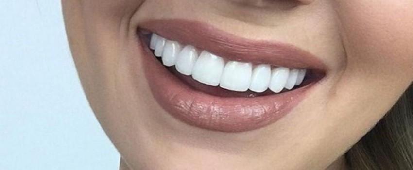 سوالات رایج در مورد کامپوزیت دندان
