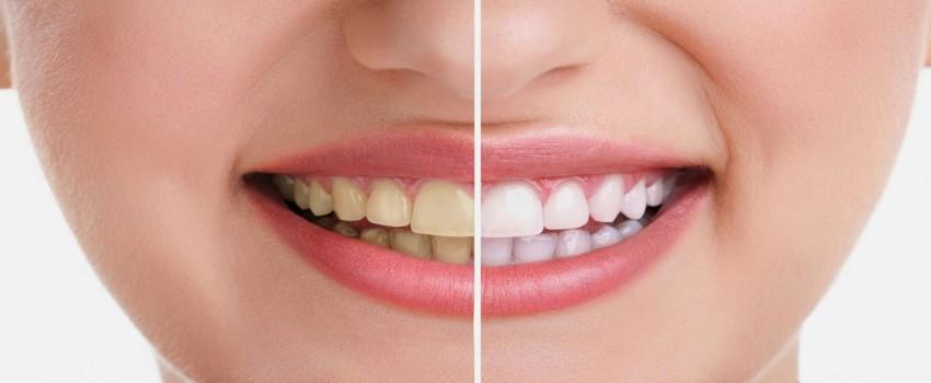 سفید کردن دندان چیست؟