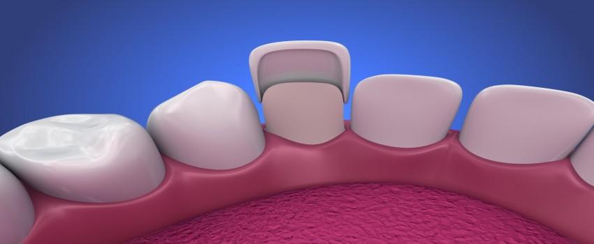 هزینه لمینت دندان