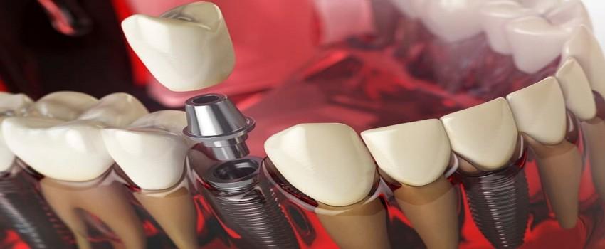 مشکلات ایمپلنت دندان