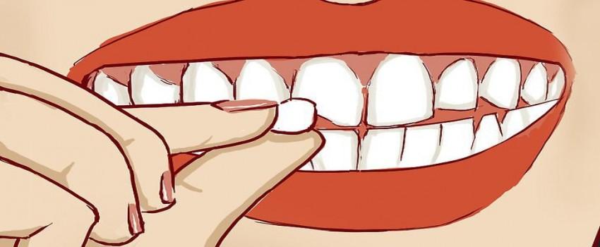 دندان شکسته: علل و درمان آن
