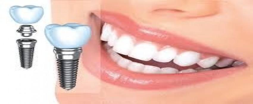 ویتامین D برای موفقیت ایمپلنت دندان مهم است