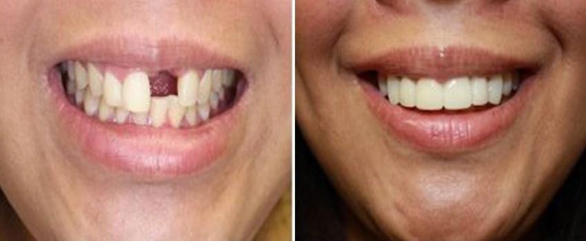 جایگزین های ایمپلنت دندانی