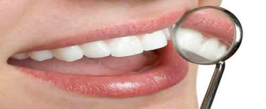 روشهای داشتن لبخند زیبا