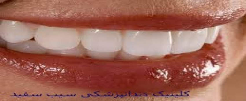 اشتباهاتی که منجر به لمینت دندان و کامپوزیت دندان ناموفق می شوند