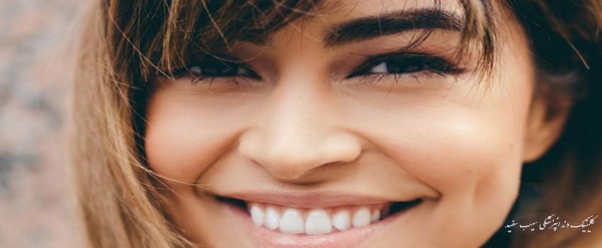 آیا لمینت دندان عوارض دارد؟